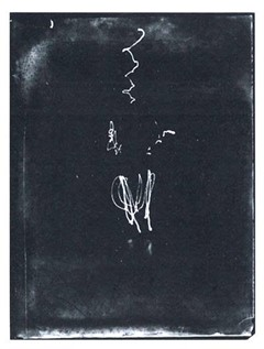 Étienne-Jules Marey e Georges Demeny. Pathological Walk From in Front, 1889